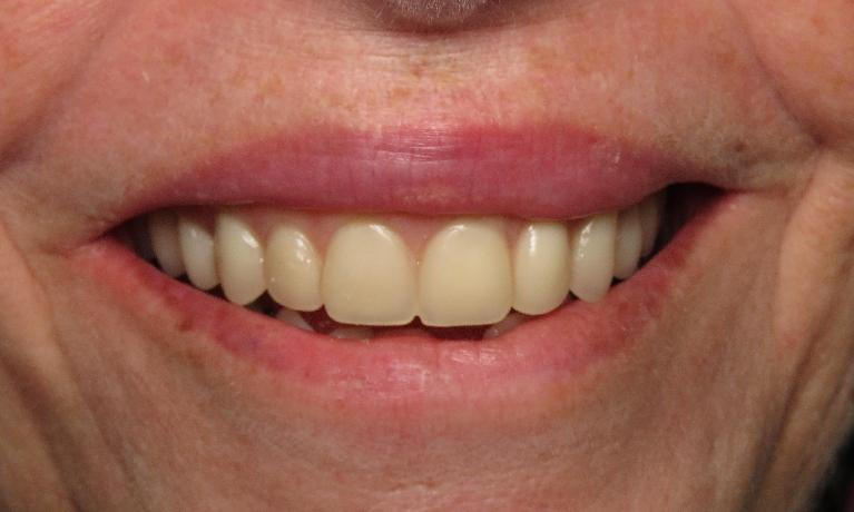 Natural-Looking-Dentures-After-Image