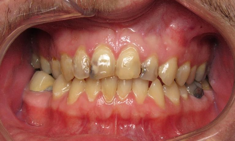 Smile-Improvement-with-Bonding-Before-Image